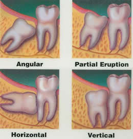 All Smiles Dental | Impacted Wisdom Tooth - Dentist Geelong