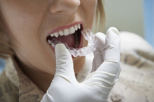 All Smiles Dental | Invisalign Treatment - Dentist Geelong