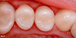 All Smiles Dental | White Fillings - Dentist Geelong