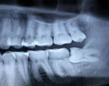 All Smiles Dental | Wisdom Teeth Dental X-ray - Dentist Geelong