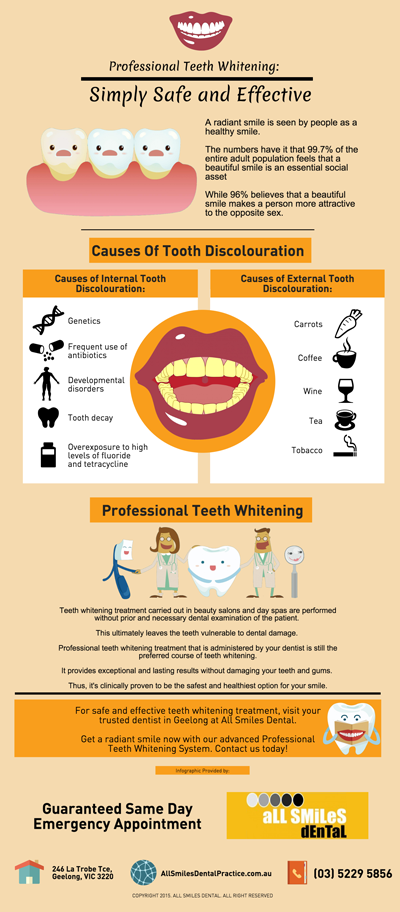 Professional Teeth Whitening: Simply Safe and Effective