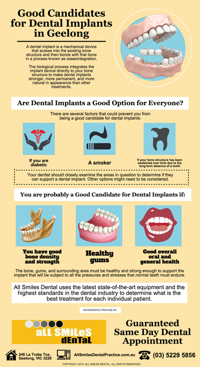 Good Candidates for Dental Implants in Geelong
