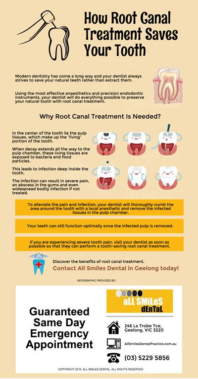 How-Root-Canal-Treatment-Saves-Your-Tooth